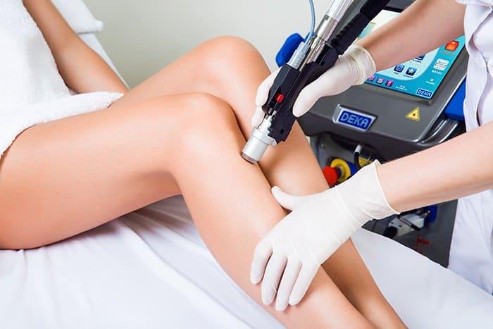 epilare cu laser definitiva gambe