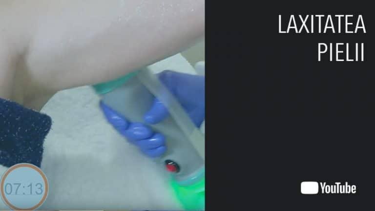 thumb laxitate video Onda