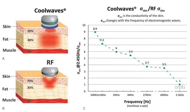 imagini studii Onda Coolwaves comparativ cu Radiofrecventa