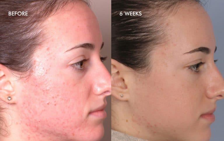 acnee inainte si dupa fata tratament cu dermalinfusion