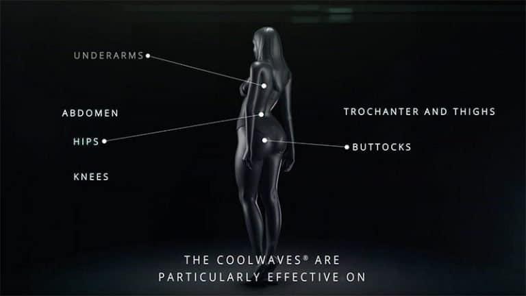 zone de actiune Onda marcate pe un corp