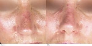 Inainta si dupa tratament cu lase pentru leziuni vasculare pe nas
