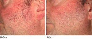 inainte si dupa tratamentul cu laser vascular pentru vinisoare faciale la un barbat