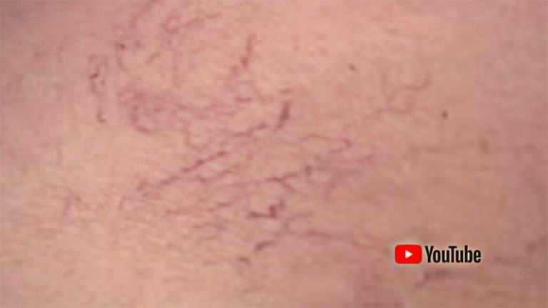 laser vascular cover video vinisoare youtube