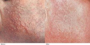 inainte si dupa tratmentul cu laser vascular pentru vinisoare / vase pe obraz